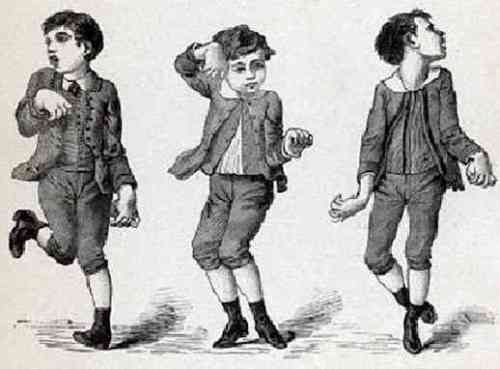 sydenham's chorea Sydenham's chorea is a childhood movement disorder thomas sydenham, after whom the condition is named, first described it in 1686 the word 'chorea' comes from the greek word for 'to dance.