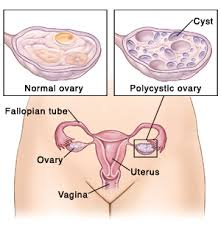 PCOS - Polycystic Ovarian Syndrome
