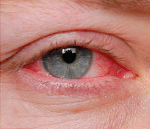 pink eye - conjunctivitis