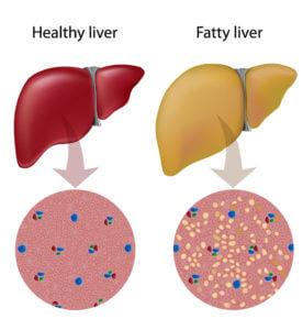Fatty liver – Homeopathic Treatment - Philadelphia