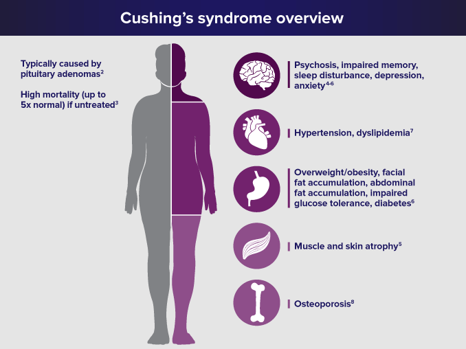 Cushing's disease treatment - Philadelphia Homeopathic Clinic